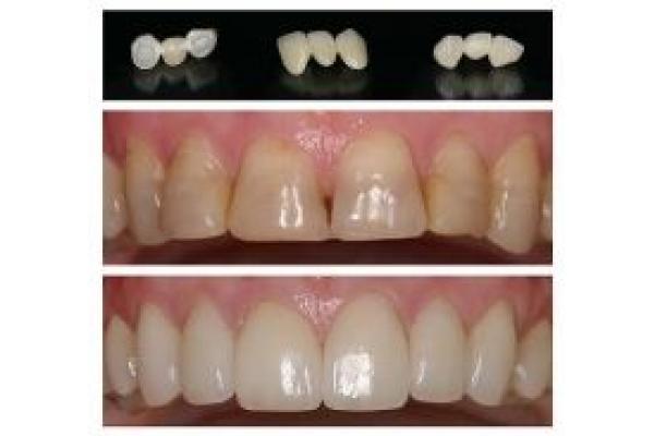 Premium Dental - Clinica de estetica dentara - lava_restorations.jpg