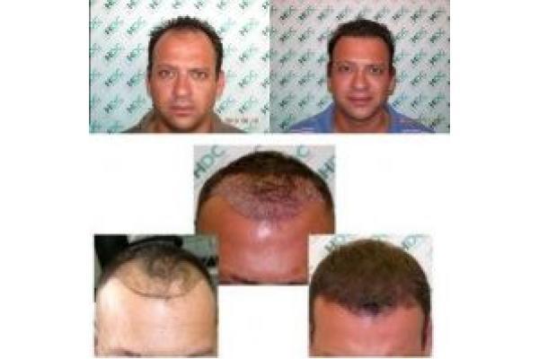 Implant de Par HDC - Alex_0-2yrs.jpg