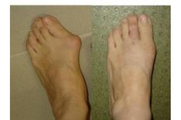 Centrul de Chirurgia Ante-piciorului Dr. Marius Uscatu - 0.jpg