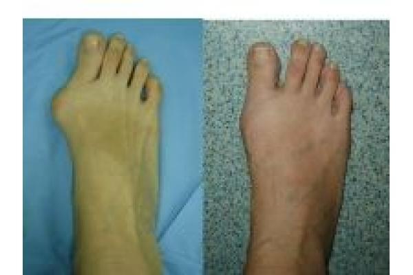 Centrul de Chirurgia Ante-piciorului Dr. Marius Uscatu - 1.jpg
