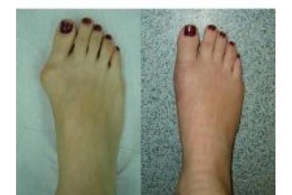 Centrul de Chirurgia Ante-piciorului Dr. Marius Uscatu - 2.jpg