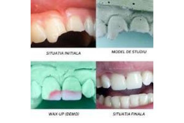 Cabinet Stomatologic Dr. Tarlev - restaurare_directa.jpg