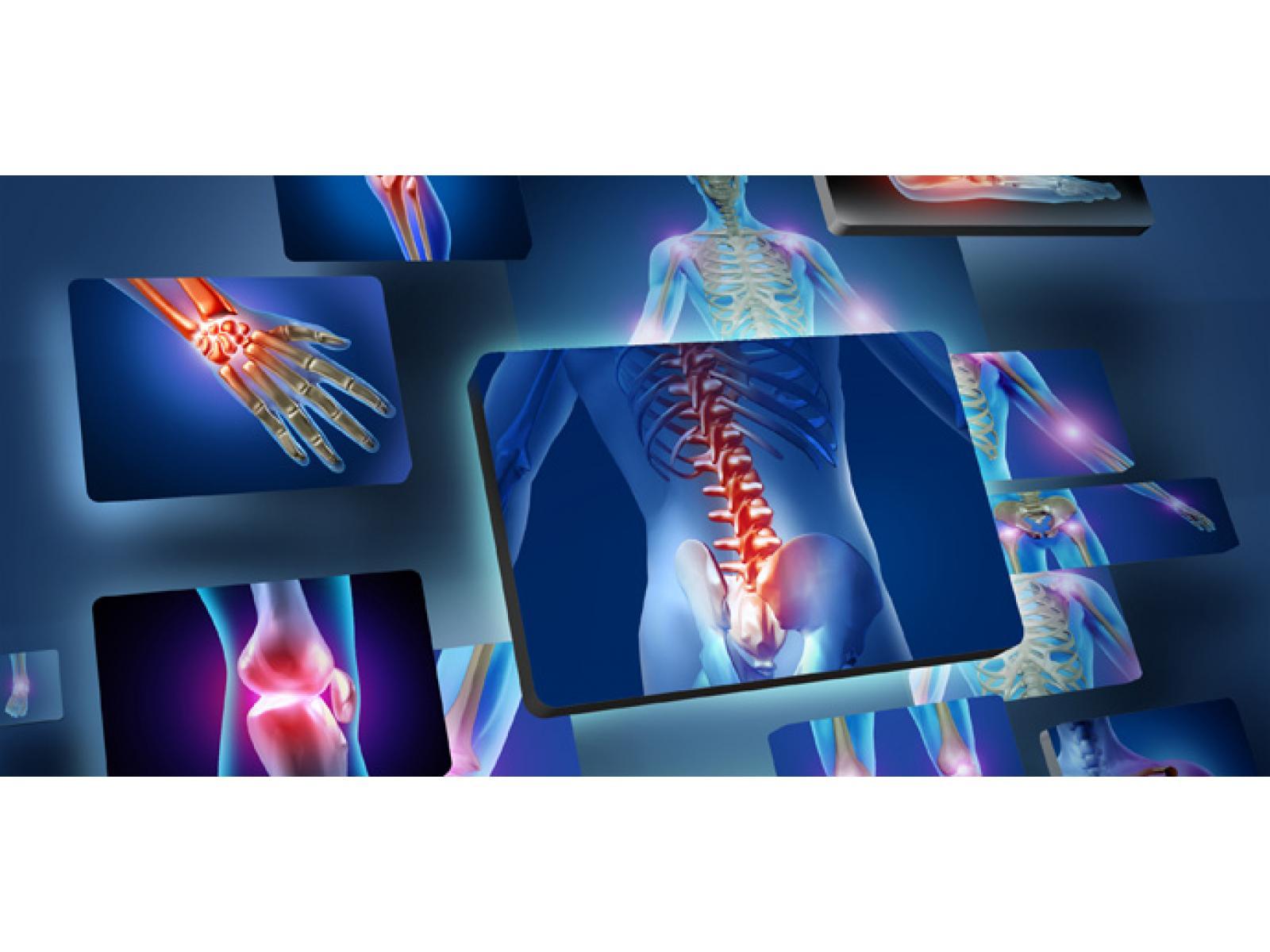 NEUROPAIN - acute_low_back_pain.jpg