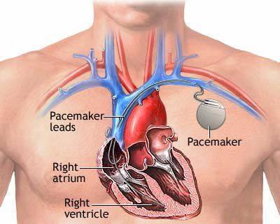 Controlul periodic al stimulatoarelor si defibrilatoarelor cardiace acum la Centrul Medical PROCLINIC