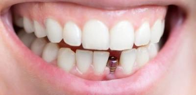 Implantul dentar, NASA și turiștii din București