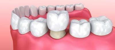 Coroana dentară. Definiție și utilitate