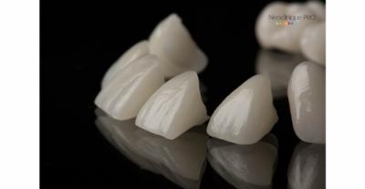 Reabilitare dentara estetica cu tehnica skyn, fatete si coroane dentare cu aspect natural