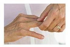 artritele reactive
