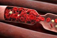 Aliatii naturali impotriva trombilor si cheagurilor de sange