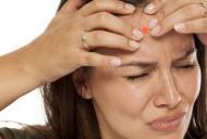 Cum se trateaza corect acneea chistica?