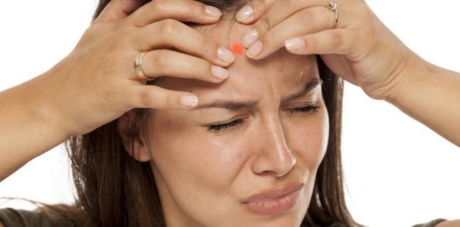 Tot ce trebuie să știți despre acneea chistică
