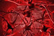 Anemia - cauze, simptome si tratament
