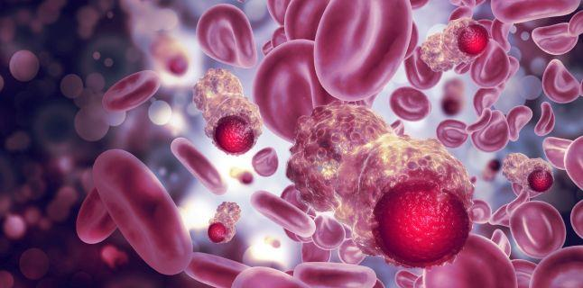 cancer peritoneu tratament)