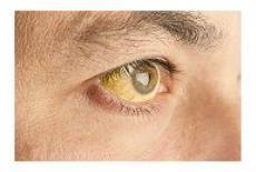 simptome ciroza hepatica alcoolica)