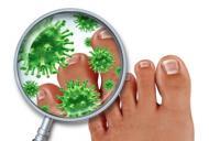 Ciuperca piciorului: 5 reguli pentru a evita infectia