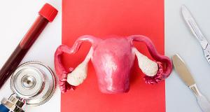 Cum functioneaza tratamentele naturiste pentru endometrioza?