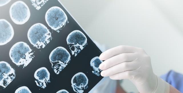 epilepsia medicamente care provoacă pierderea în greutate)