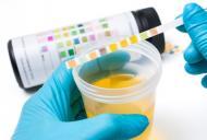 Care sunt cauzele infectiilor urinare frecvente?