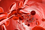 Leucemia - simptome si tratament