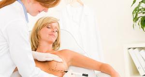 Mamoplastia de reductie