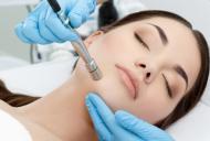 In ce consta microdermabraziunea faciala?