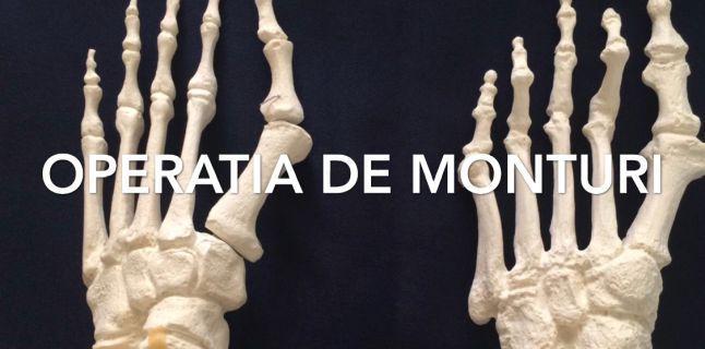 operatie monturi picioare artroza în articulațiile genunchiului provoacă și tratament