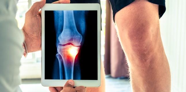 osteoartrita provoca pierderea în greutate
