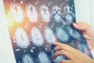 Aspecte ale ingrijirii persoanelor cu paralizie cerebrala