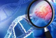 Care sunt primele semne ale bolii Parkinson