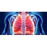 Cum se poate ajunge la plaman perforat (pneumotorax)?
