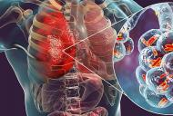 Bronsita sau pneumonie? Cum sa deosebesti aceste doua afectiuni