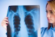 Cauzele aparitiei pneumoniei in timpul verii