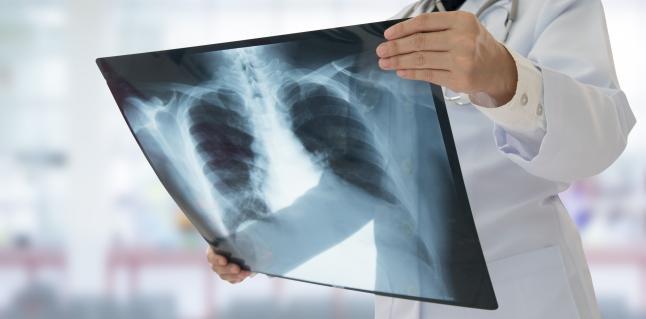 tuberculoza provoacă pierderea în greutate)