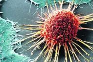 Moartea celulelor canceroase prin mecanismul enzimei CYP1B1