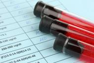 Limfocitopenia – cauze, simptome, tratament