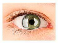 viziune după transplant de cornee