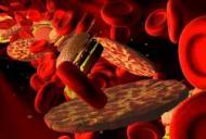 Ce este tromobocitopenia si cum poate fi diagnosticata?