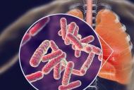 Diagnosticul si evaluarea terapiei in meningita tuberculoasa