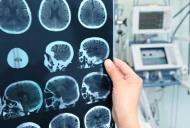 Tumorile hipofizare (ale glandei pituitare)